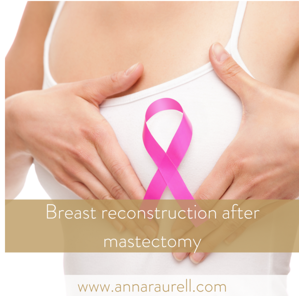 Breast reconstruction after a mastectomy